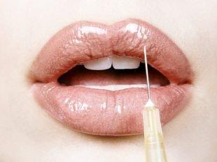 Как заполучить пышные уста: увеличение губ гиалуроновой кислотой